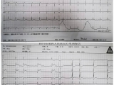 就诊于消化科的上腹痛,竟是急性心肌梗死!
